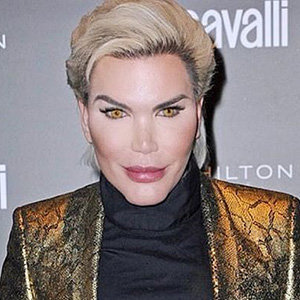 Rodrigo Alves Wiki, Net Worth, Gay, Before and After